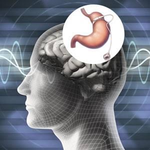 Banda gástrica virtual para adelgazar por hipnosis en Sagunto